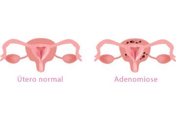 Adenomiose